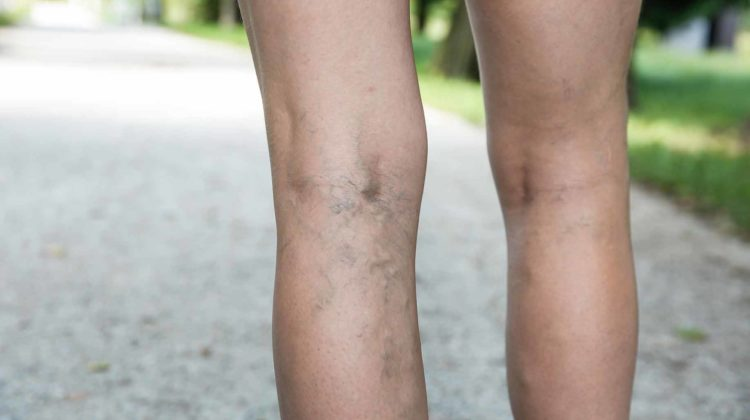 How Much Does Varicose (Spider) Vein Treatment Cost – Prices