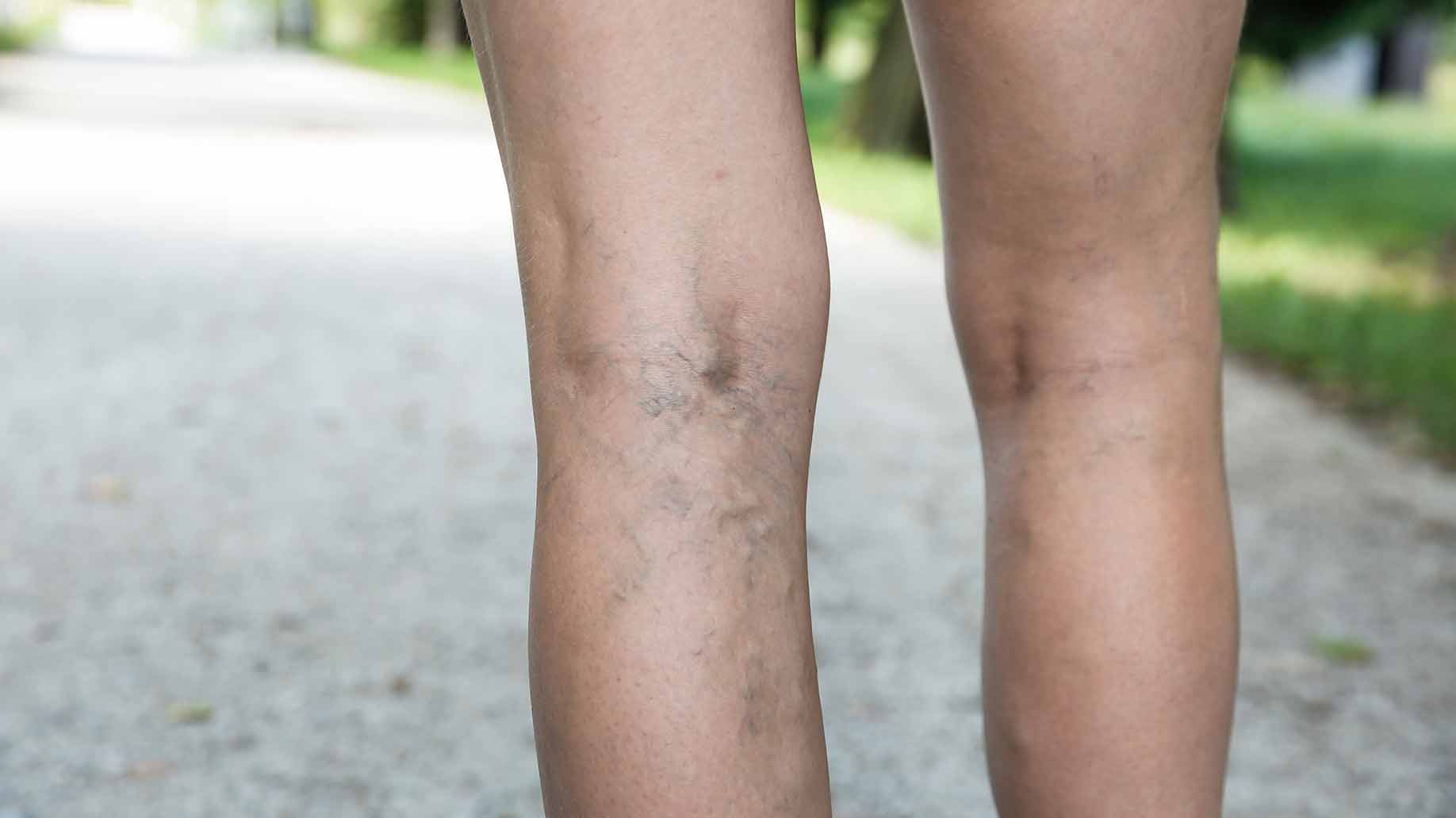 varicose spider veins in legs